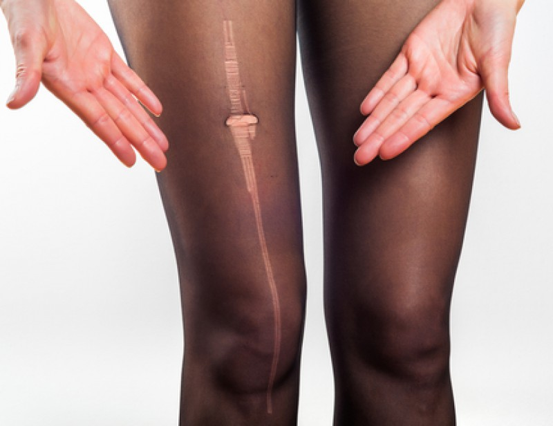 Un cas d'obsolescence programmée — Collants filés